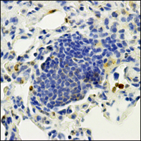Metastasis of breast cancer cells in the lung